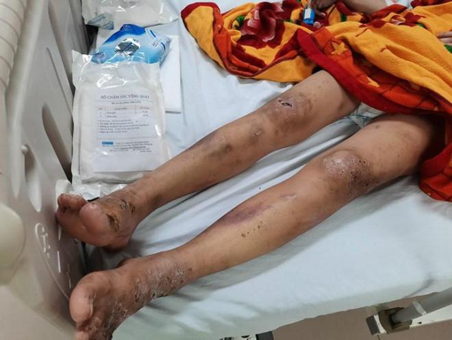 Lộ thêm đồng phạm vụ cô gái trẻ bị tra tấn dã man giữa TP Biên Hòa, Đồng Nai - 1