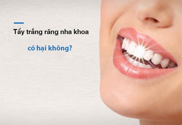 Tẩy trắng răng có đau và gây hại ảnh hưởng  tới sức khỏe không? - 5
