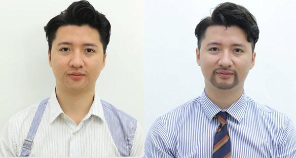 Cấy râu tự thân có mang lại vẻ đẹp nam tính cho phái mạnh? - 1