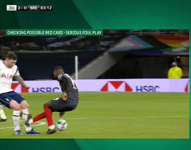 SAO Tottenham máu chiến: Chân rách toác vẫn muốn đá tiếp, Mourinho phải ngăn - 1