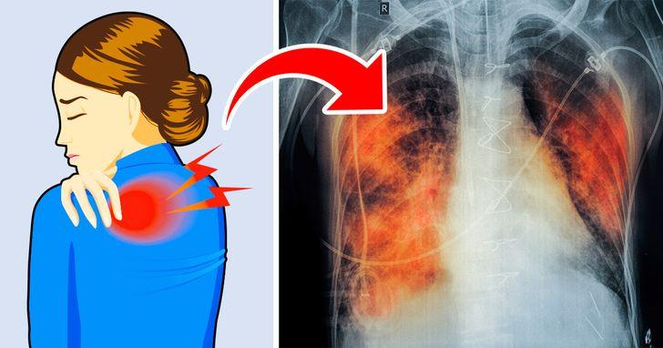 """5 dấu hiệu cho thấy hai lá phổi đang """"cầu cứu"""" - 1"""