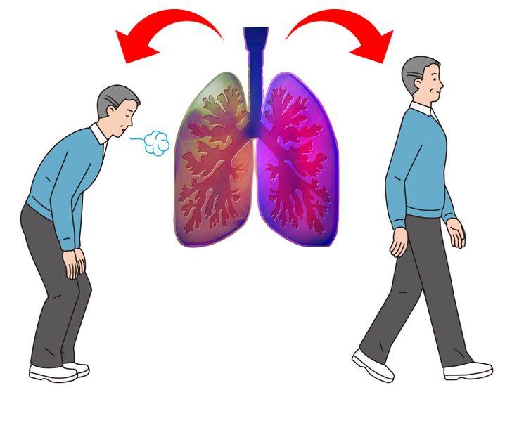 """5 dấu hiệu cho thấy hai lá phổi đang """"cầu cứu"""" - 3"""