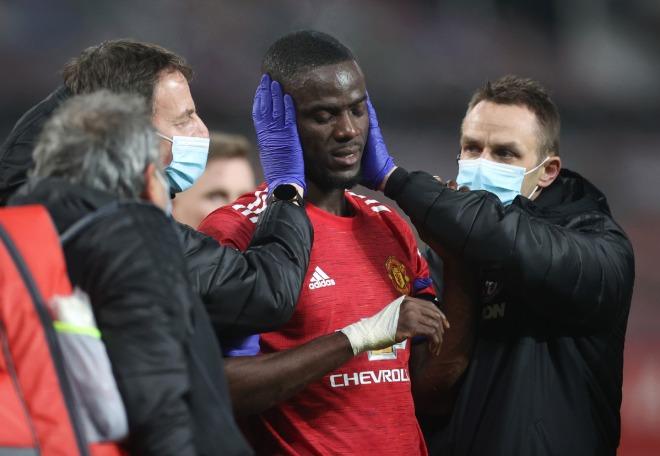 MU lo sốt vó: Pogba và 3 SAO chấn thương, có kịp trở lại đấu Liverpool? - 1