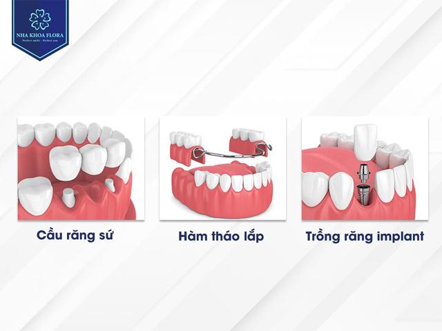 Trồng răng giả bằng cách nào là tối ưu? - 1