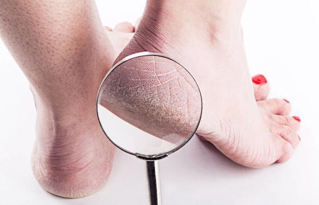 """Gót chân thường xuyên bị khô và nứt nẻ, coi chừng sức khỏe đang """"kêu cứu"""" - 1"""