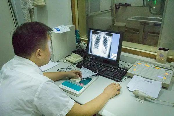 """Hai vợ chồng cùng mắc ung thư phổi: bàn tay phát """"tín hiệu"""" lạ nhưng không để ý - 1"""