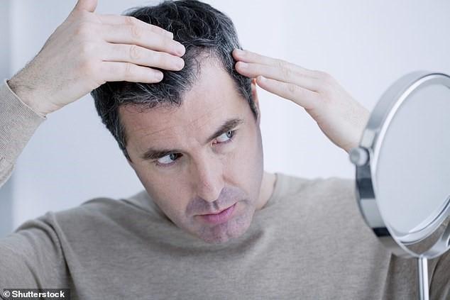 Gần 1/4 bệnh nhân bị... mất tóc sau khi nhiễm COVID-19 - 1