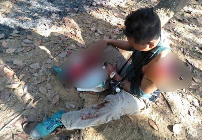 Kinh hãi người đàn ông bị bò tót húc nát vai và chân ở Đồng Nai - 1