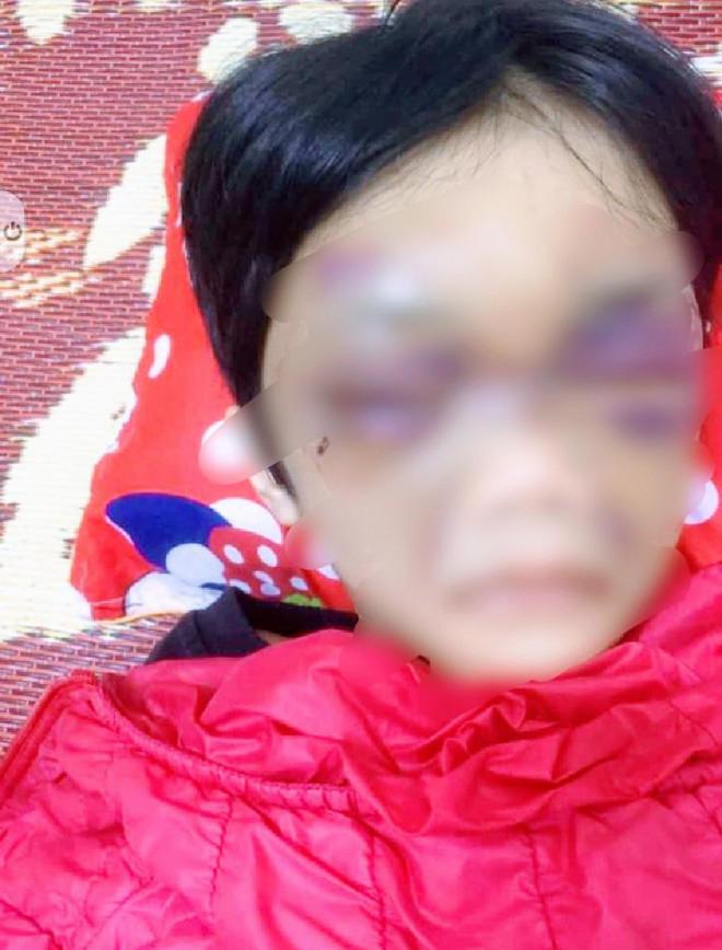 Hải Dương: Bé gái 6 tuổi bị mẹ đẻ bạo hành - 1