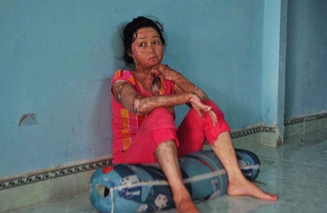 Nỗi đau của người vợ bị chồng tẩm xăng thiêu sống, dùng hết sức lực để cứu hai con - 1