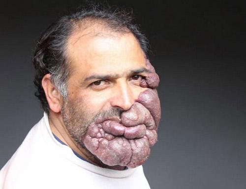 Người đàn ông với khối u khổng lồ trên mặt - 1