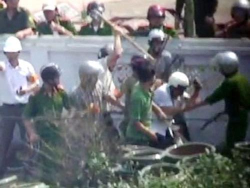 Nhà báo bị đánh: GĐ CA Hưng Yên lên tiếng - 1