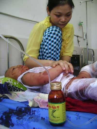 Bé trai bỏng toàn thân do dị ứng thuốc - 1
