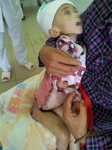 """Cháu bé tử vong vì chữa bỏng ở """"lang vườn"""" - 1"""