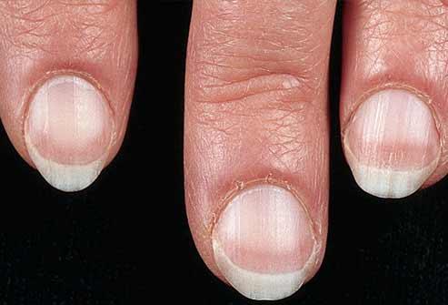 Móng tay bất thường là dấu hiệu bệnh nặng - 1