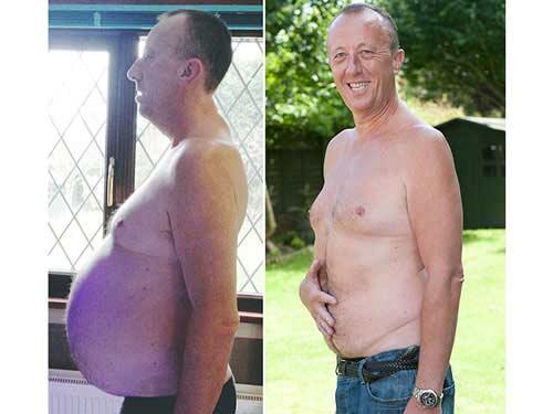 Mang khối u nặng gần 22 kg mà ngỡ bụng bia - 1