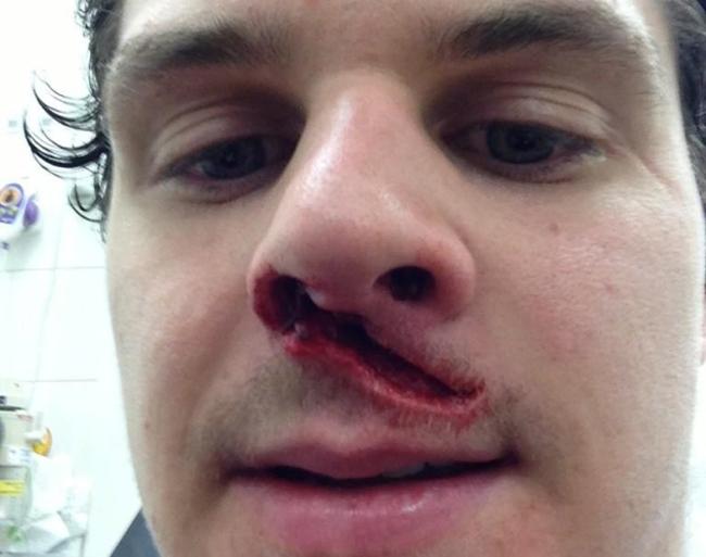 Cầu thủ hockey trên băng của đội Belfast Giants, Craig Peacock phải khâu tới 29 mũi trên mặt sau khi lĩnh trọn gậy hockey từ đối thủ Bobby Chaumon của đội Fife Flyers vào thời điểm trước Giáng sinh năm ngoái. Sau khi bất tỉnh nhân sự trên sân, Peacock đã hồi tỉnh và còn kịp chụp ảnh để khoe chiến tích trên Twitter.