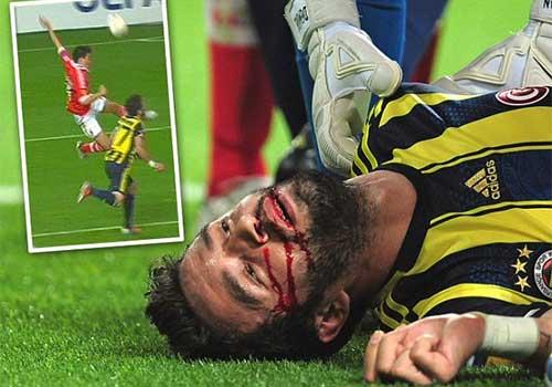 Chấn thương kinh hoàng của cầu thủ Fenerbahce - 1