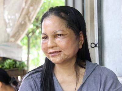 'Cô gái hóa bà lão': Sức khỏe giảm sút - 1