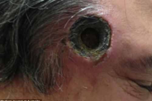 Thủng lỗ thái dương vì dùng thuốc lang băm - 1