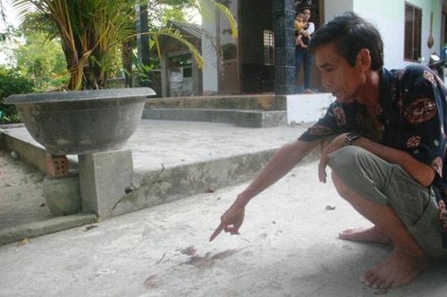 Giết vợ sắp cưới rồi tự tử: Nạn nhân đã tỉnh - 1