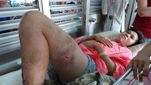 Gãy chân vì bị cả gia đình bạn gái tra tấn dã man - 1