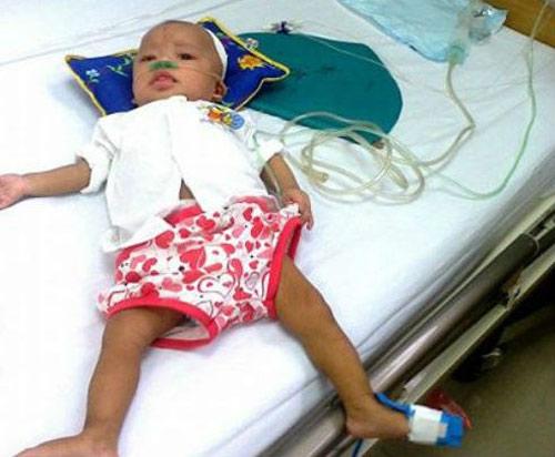 Bé 9 tháng tuổi bị sởi biến chứng vào phổi, não, thận - 1
