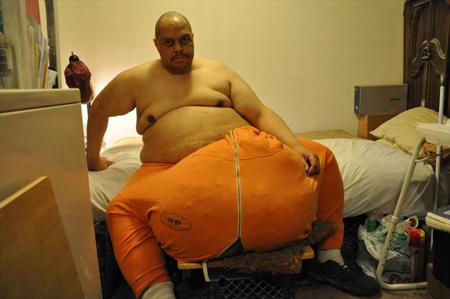 Ông Wesley Warren Jr.đến từ Mỹ đã sở hữu kỷ lục thế giới khi mang trong mình căn bệnh phù tinh hoàn, khiến'của quý' của anh ngày càng to lên và chạm mốc45kg.