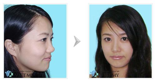Phẫu thuật nâng mũi đẹp ở Bệnh viện Việt Mỹ - 1