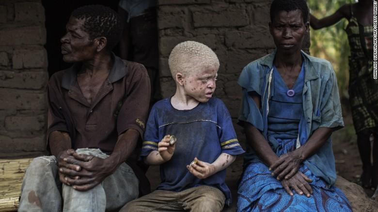 Nạn săn người bạch tạng lấy xương man rợ ở Malawi - 1
