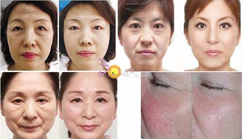 HOT: Ưu đãi 75% dịch vụ xóa nhăn, trẻ hóa da mặt không phẫu thuật - 1