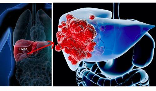 Nhận biết 6 dấu hiệu ung thư gan trước khi quá muộn - 1