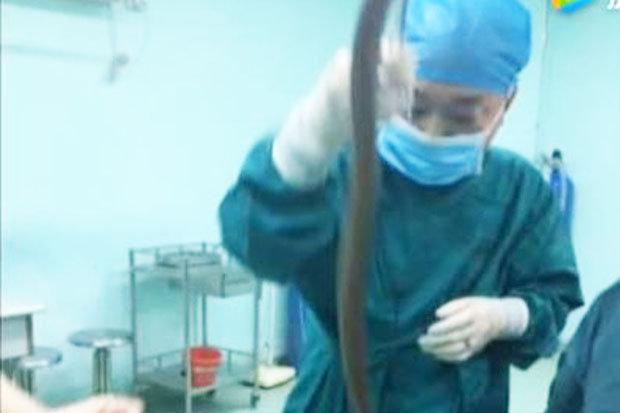Lươn dài 50cm chui từ hậu môn vào làm tổ trong bụng người đàn ông - 1