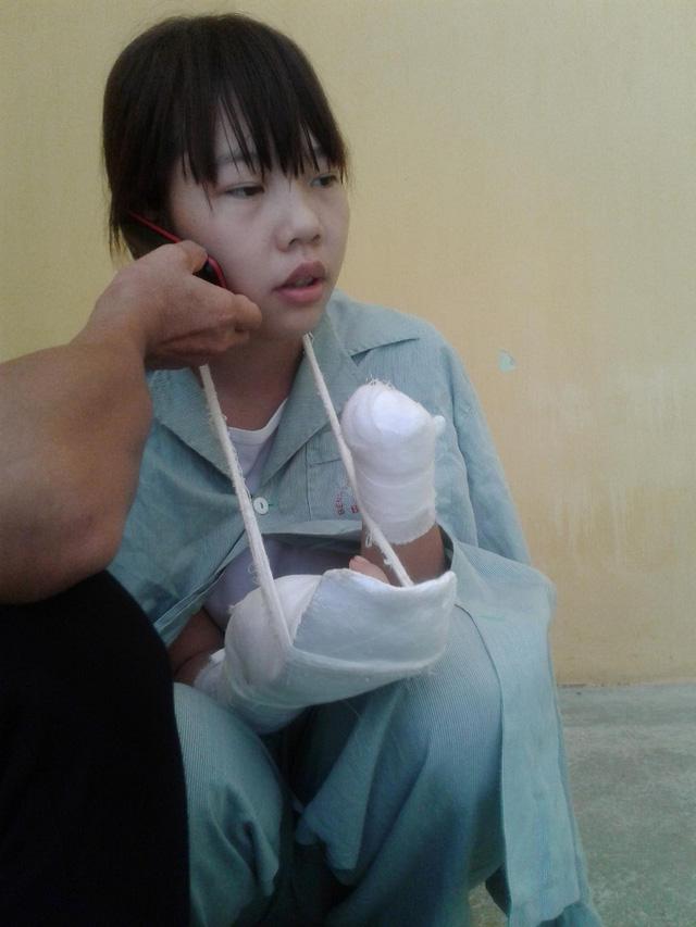 Nữ công nhân xinh đẹp bị máy dập nát đôi tay giờ ra sao? - 1