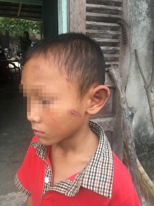 Bé trai 5 tuổi bị dì ruột bạo hành dã man - 1