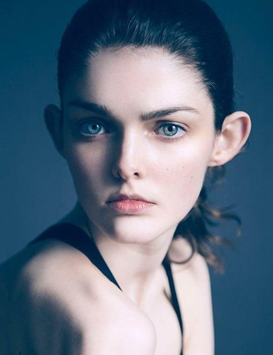 """Người mẫu bị kỳ thị vì """"xấu lạ bẩm sinh"""" vẫn đắt giá trong làng mốt - 1"""