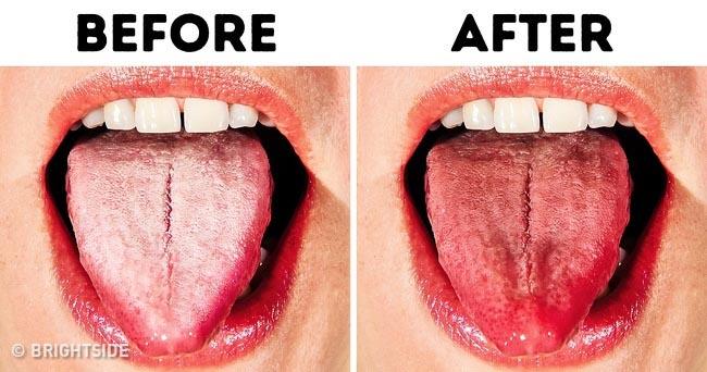 10 cách chữa bệnh lưỡi trắng đơn giản nhất ngay tại nhà - 1