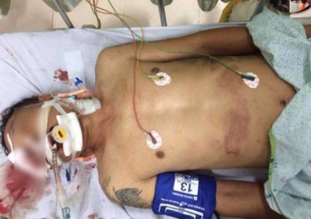 Thông tin mới về sức khoẻ nạn nhân bị xe bán tải kéo lê tại ngã 6 Ô Chợ Dừa - 1