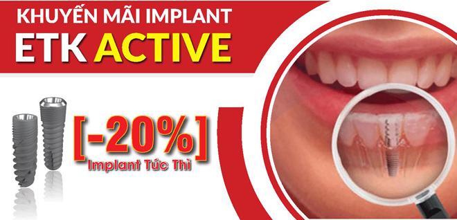 Ưu đãi 20% trồng răng Implant cho khách hàng đăng ký sớm - 1