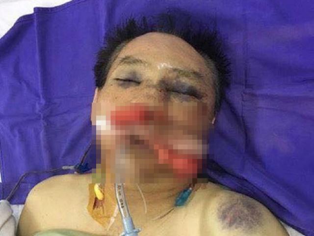 Cựu đại tá công an cùng con trai đánh anh ruột đến chết
