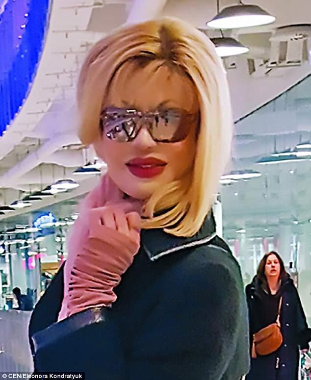 Người đẹp Nga bị tạt axit xuất hiện sau 200 cuộc phẫu thuật - 1