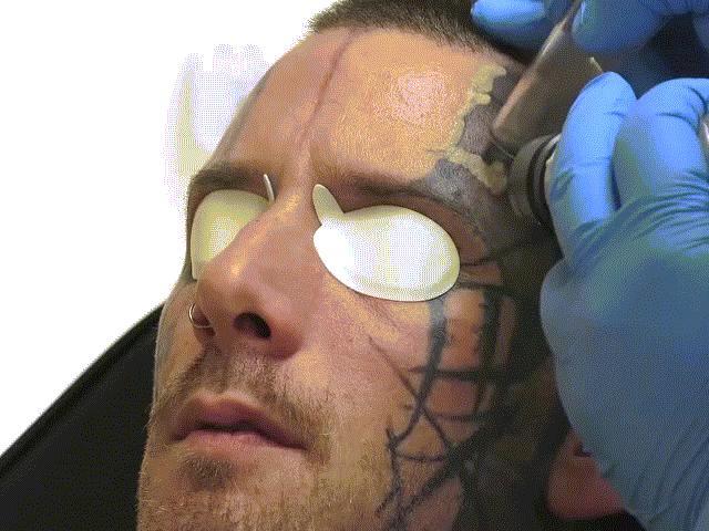 Xóa sạch vết xăm vằn vện trên khuôn mặt nhờ công nghệ mới