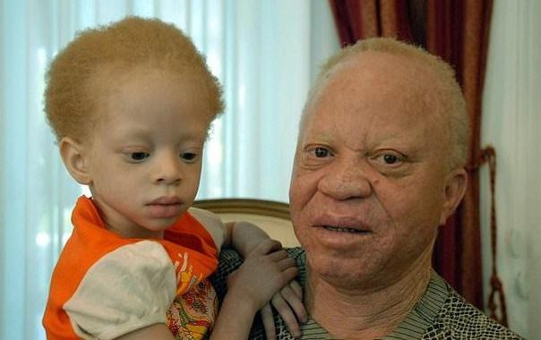 Bé gái Mali bạch tạng bị sát hại dã man để làm thuốc - 1