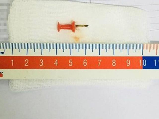 Nuốt phải đinh sắt dài 1,5 cm, bé 12 tuổi suýt chết - 1