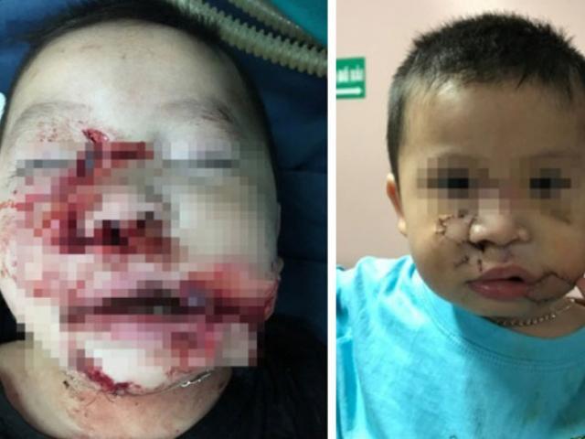 Nhiều trẻ em bị chó cắn nát mặt