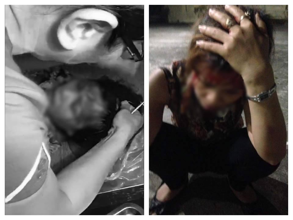 Cô vợ bất hạnh bị người tình của chồng đánh ghen chảy máu đầu - 1