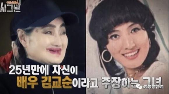 Cựu minh tinh Hàn Quốc sống trong căn nhà chứa 4 tấn rác toàn giòi bọ - 1