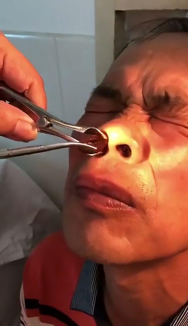 Hãi hùng cảnh lôi đỉa khổng lồ khỏi mũi bệnh nhân - 1