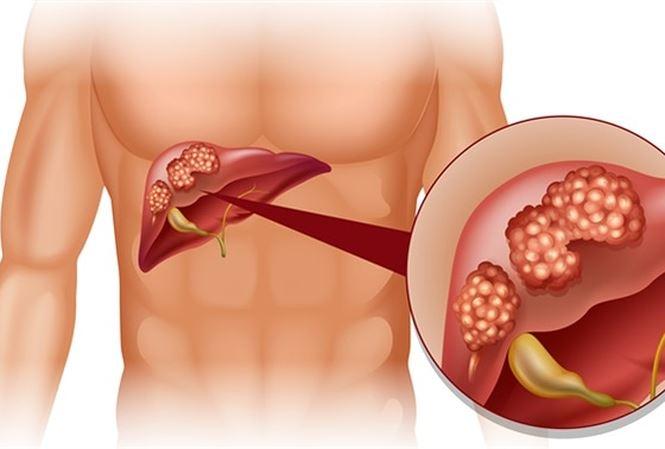 5 triệu chứng ung thư gan thường gặp nhất - 1