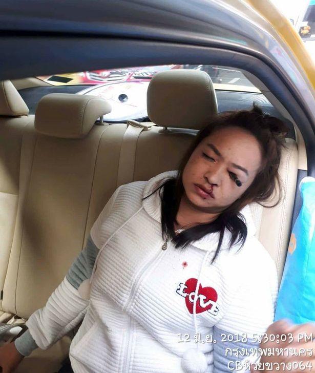 Trang điểm trên taxi, cô gái bị bút đâm thủng mắt - 1